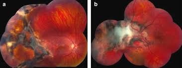 Both Cases Reveal The Entity Of Chorioretinitis Sclopetaria As Well Traumatic Maculopathy