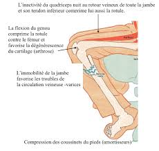 assis attention danger orthopedie pour tous