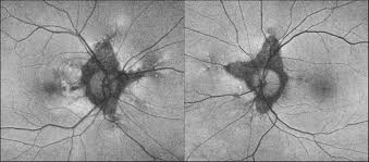 Ultra Widefield Imaging In Patients With Angioid Streaks Secondary