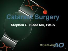 Alcon Surgical Sinking Spring Pa by New Options In Anterior Surgery U201d Steven B Siepser Md January 12
