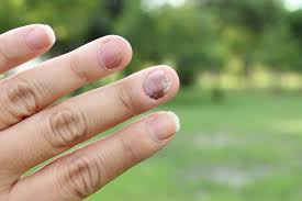Infected Fingernail Bed by Is It Nail Psoriasis Or Fungus