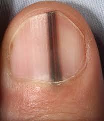 Nail Bed Melanoma by Are Black Lines In Fingernails Melanoma Safe Symptoms