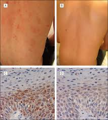 Pityriasis Rosea Christmas Tree by Enterovirus Infection As A Possible Cause Of Pityriasis Rosea