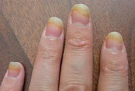finger nail bed infection best nails 2018