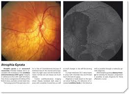 RP More Than Just A Single Disease Vision Researcheu