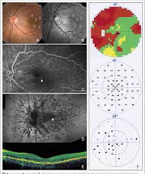 Intravitreal Ranibizumab For Choroidal Neovascularization In A