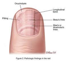 Nail Bed Melanoma by 13 Nail Bed Melanoma How Your Nails Give You Warning Signs