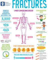 Interesting Facts About Fractures | Nursing Tips | Pediatric Nursing ... Its The Small Moments That Matter On Valentines Day Fractureme Browse Images About At Instagram Imgrum 25 Off Fracture Coupons Promo Discount Codes Wethriftcom Nicole Banuelos Twitter Our Homework Station Is Finally Bone Healing Supplements Do They Work Health Fractureme Com Coupon Coupon Glass Photos Reviews 35 Of Fracturemecom Fat Bike Great Deal Thread Mtbrcom Display Your With Fall Sale 15 Top 10 Punto Medio Noticias