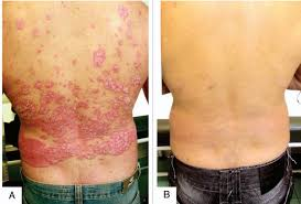 35 000 iu vitamin d daily for 6 months helped all psoriasis