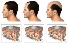 Menumbuhkan Rambut Botak Karena Keturunan