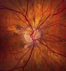 Angioid Streaks And Optic Disc Drusen In Pseudoxanthoma Elasticum Visual Field Loss Secondary To Disk Became Evident Before The Development