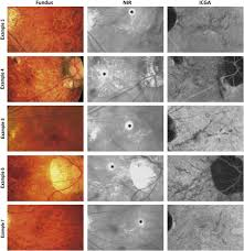 Multimodal Imaging Including Spectral Domain Optical Coherence