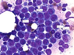 Woods Lamp Examination In Dogs by Cytology Canine Hepatic Mass Aspirate See The Mitotic Figure On
