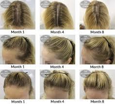 Propecia Shedding After 1 Year by Belgravia Hair Loss Blog