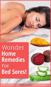 home remedies for bed sores wonder treatments