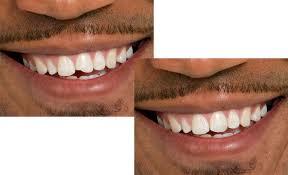 Dental Bonding – East Point GA – Cosmetic Dentistry – Pampered Smiles