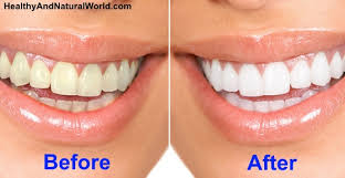 to Naturally Whiten Your Teeth In 3 Minutes at Home