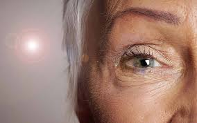 Christmas Tree Cataracts Causes by 7 Silent Signs You Might Have Eye Cataracts Reader U0027s Digest