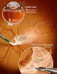 Vitrectomy For Epiretinal Membrane Peeling