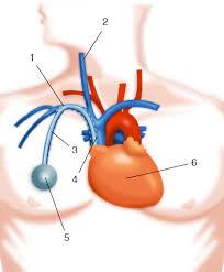 chambre implantable d馭inition port à cath opérations digestives com