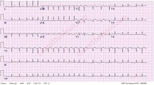 Atrial Fibrillation with Rapid Ventricular Rate Example 3