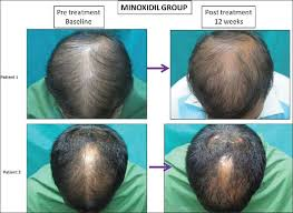 Minoxidil Shedding Phase Duration by New Dermarolling Study Forum By And For Hair Loss Patients