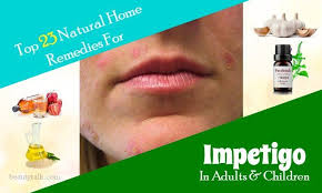 Top 23 Natural Home Reme s For Impetigo In Adults & Children