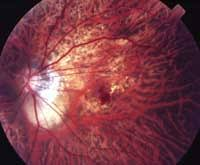 Lacquer Cracks And Choroidal Neovascularization In Pathologic Myopia