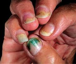White Spots On Nail Beds by What Is Pseudomonas Health Nails Magazine