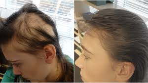 Minoxidil Shedding Phase Pictures by The Hair Centre Female Hair Loss