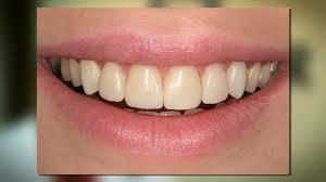 Dental Bonding Bismarck ND Dr Everett Heringer