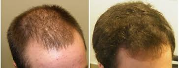hair loss help forums minox shed i think recovery with pics