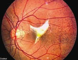 Subretinal Hemorrhages Associated With Angioid Streaks Following A Mild Ocular Trauma
