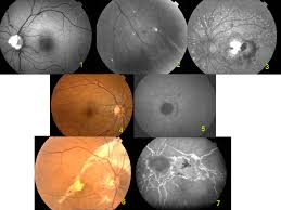 Retinal Features Of Pseudoxanthoma Elasticum 1 Angioids Streaks And Optic Nerve Drusen Red Free Imaging 2 Peripheral Comet Tails Lesions