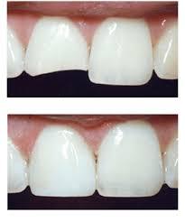 Dental Bonding CDC Dental Center