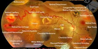 Retinal Diseases Signs In One Picture