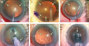 Alcon Precision Device Facility Sinking Spring Pa by Cataracts Sciencedirect