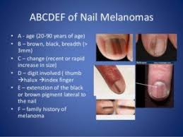 Nail Bed Melanoma by Big Toenail Has Vertical Light Brown Line Melanoma U2014 Scary Symptoms
