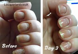 white spots in nails sue s pure nail oil challenge
