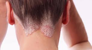excessive hair shedding causes psoriasis and hair loss is there a connection
