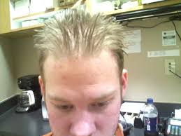 Propecia Shedding 2 Weeks by Hair Loss Help Forums Irishpride86 Hair Treatments Timeline With