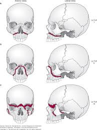 Orbital Floor Fracture With Entrapment by Chapter 23 Maxillofacial U0026 Neck Trauma Current Diagnosis