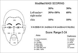 Woods Lamp Examination Melasma by A Randomised Open Label Comparative Study Of Tranexamic Acid