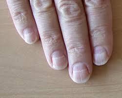 muehrcke lines of the fingernails background pathophysiology