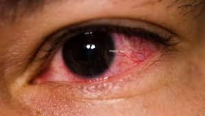 Halloween Contacts Cheap No Prescription black contact lenses full eye all black sclera pure solid