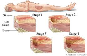 pressure ulcer sores and bad circulation problems