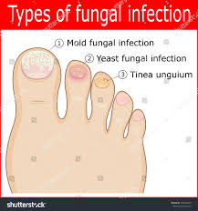 Cyanotic Nail Beds by What Is Nail Fungus Onychomycosis Tinea Unguium Health Life Media
