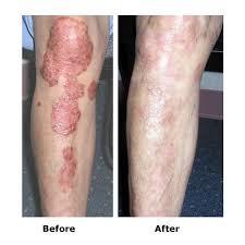 dermahealer uvb narrowband l to treat psoriasis vitiligo eczema