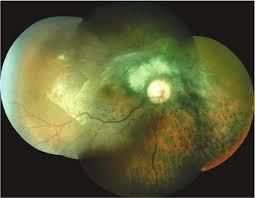 Chorioretinitis Sclopetariainitial Retinography Of The Right Eye