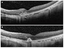 A Shows Hyperreflective Lesion Corresponding To Small Juxtafoveal Myopic Choroidal Neovascularization Arrow Located Above The Retinal Pigment